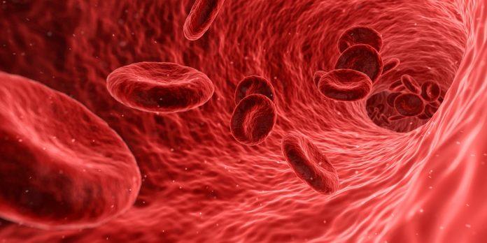 Mengenal Anemia dan Pengobatannya